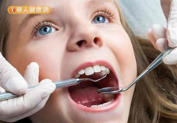 兒童咬合不正做牙齒矯正 戒掉吸吮大拇指不良習慣2