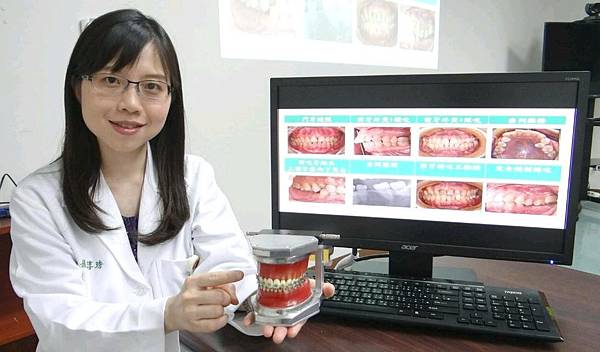 牙齒矯正非只未成年人專利 成人矯正著重功能改善((新聞分享))