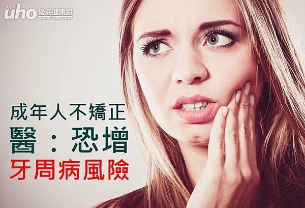 成年人不矯正 醫:恐增牙周病風險((新聞分享))