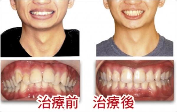 牙矯正治療換臉型 人人效果不一((新聞分享))