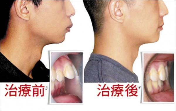 牙矯正治療換臉型 人人效果不一2