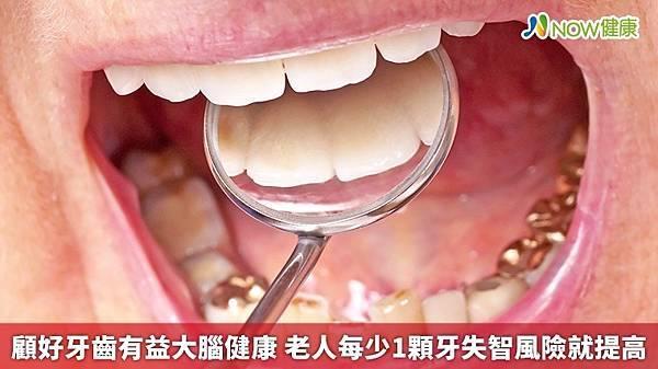 顧好牙齒有益大腦健康 老人每少1顆牙失智風險就提高1