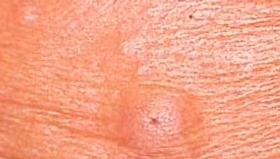 epidermal cyst.jpg