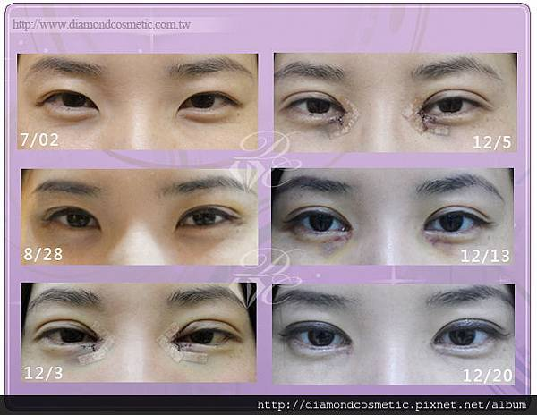 小鴨眼睛進化圖(1) (1)