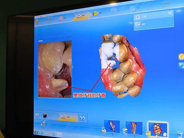 悅庭牙醫診所, 數位口掃機