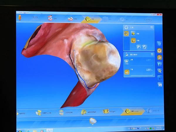 悅庭牙醫診所, DSD軟體