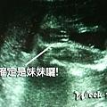 8. Pregnant week 18.jpg