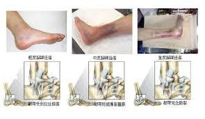 「腳踝扭傷的急性處理」的圖片搜尋結果