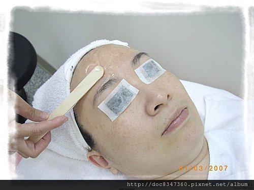 脈衝光、電波拉皮術前塗抹導入凝膠