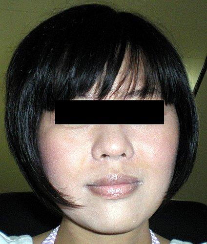 玻尿酸注射法令紋術後