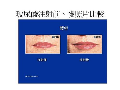 玻尿酸注射豐唇