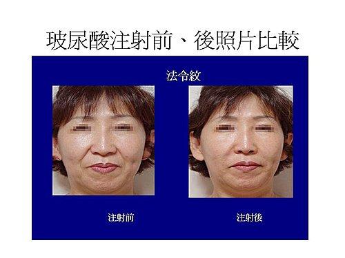 玻尿酸注射法令紋