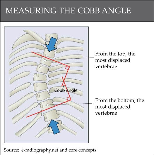 Cobb-Angle1