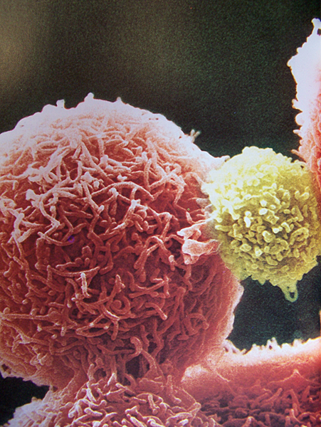 NK-Cell