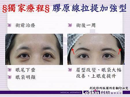 利欣診所 廖苑利 眼袋手術 電波拉皮  自體脂肪豐頰 埋線拉皮05