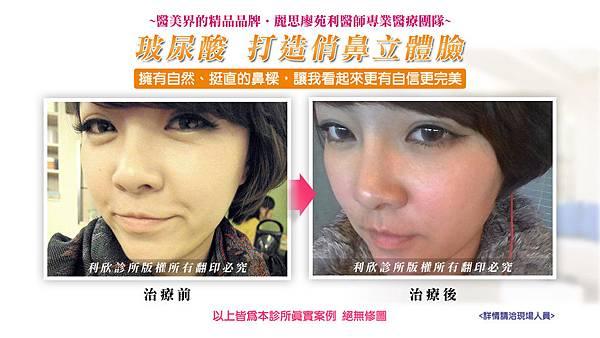 廖苑利 微整型 下巴雕塑 手術隆鼻 玻尿酸  (3)