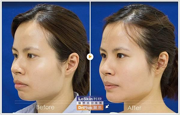 廖苑利 微整型 下巴雕塑 手術隆鼻 玻尿酸  (5)