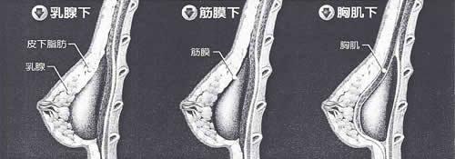 (3) 利欣 廖苑利推薦 隆乳手術推薦 胸部完美升級大解析