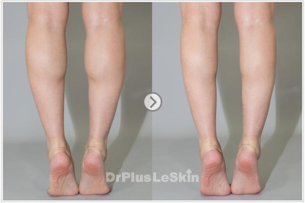 (2) 利欣 廖苑利推薦 問題  瘦腿 肉毒桿菌素 小腿肌 瘦小腿 效果 走路 術後照顧