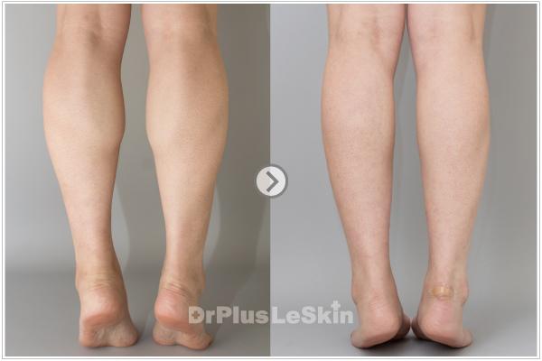 (3) 利欣 廖苑利推薦 問題  瘦腿 肉毒桿菌素 小腿肌 瘦小腿 效果 走路 術後照顧