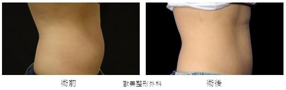 Coolsculpting-q4.jpg