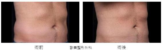 Coolsculpting-q5.jpg
