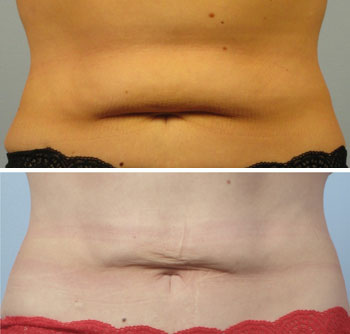 Coolsculpting-q10.jpg