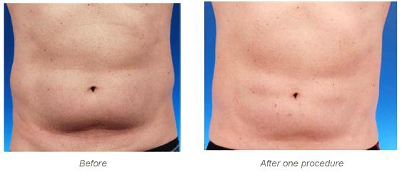 Coolsculpting-q11.jpg