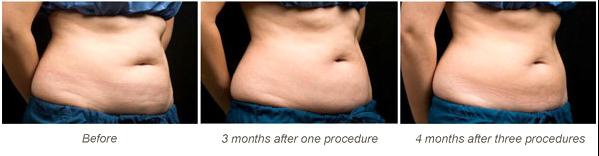 Coolsculpting-q12.jpg