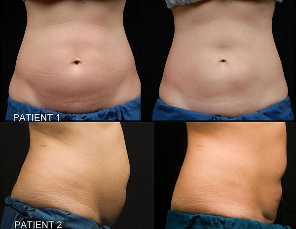 Coolsculpting-q16.jpg