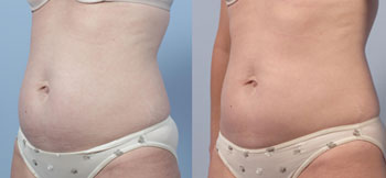 Coolsculpting-q18.jpg