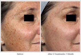 飛梭雷射治療肝斑和色素斑06.jpg