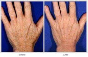 飛梭雷射治療非臉部的肌膚更新01.jpg