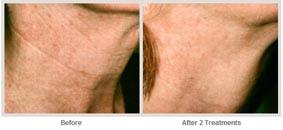 飛梭雷射治療非臉部的肌膚更新02.jpg