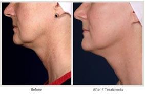 飛梭雷射治療非臉部的肌膚更新03.jpg