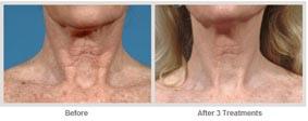 飛梭雷射治療非臉部的肌膚更新04.jpg
