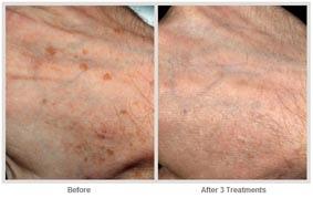 飛梭雷射治療非臉部的肌膚更新05.jpg