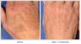 飛梭雷射治療非臉部的肌膚更新06.jpg