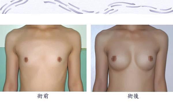 隆乳手術1-1