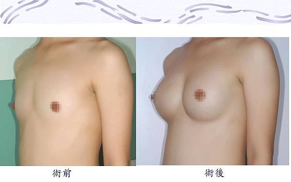隆乳手術1-2