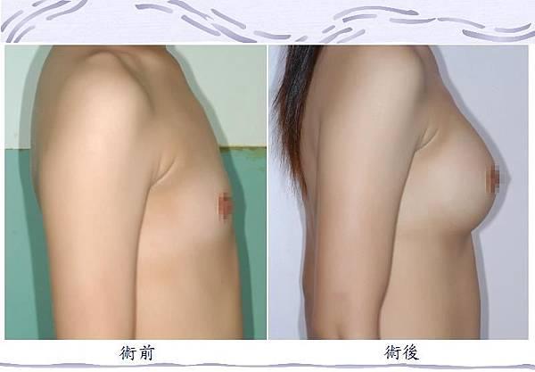 隆乳手術1-3