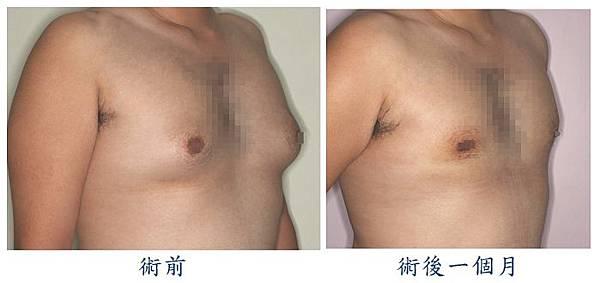 男性女乳症手術1-1