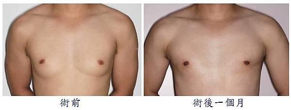 男性女乳症手術2-1