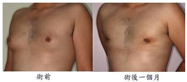 男性女乳症手術1-2