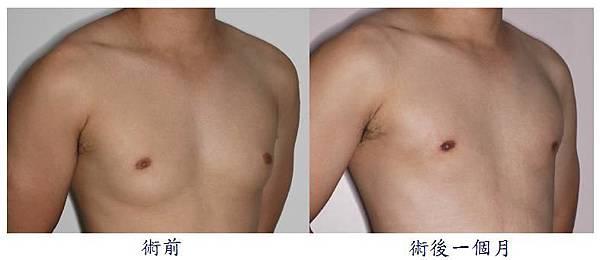 男性女乳症手術2-2