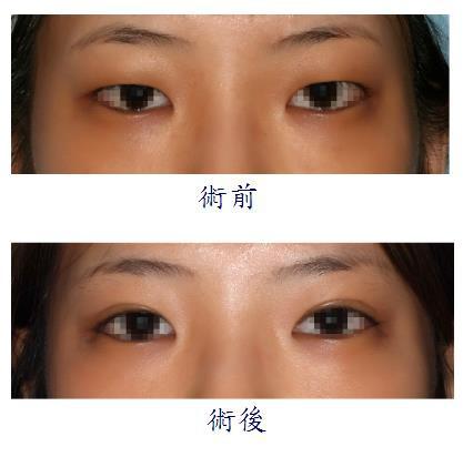 雙眼皮手術1-1