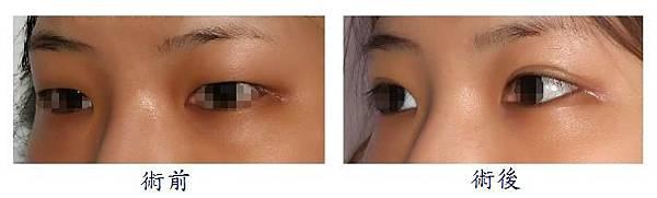 雙眼皮手術1-2