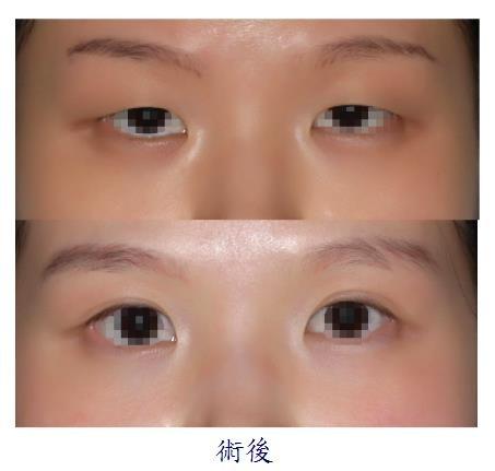 雙眼皮手術2-1