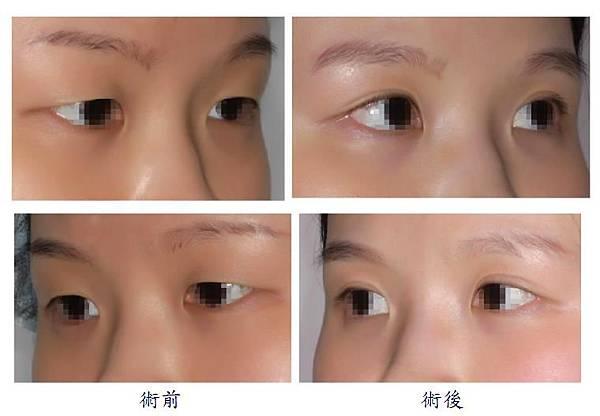 雙眼皮手術2-2