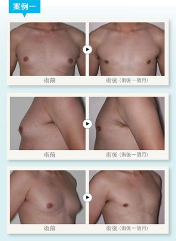 男性女乳症手術2.jpg